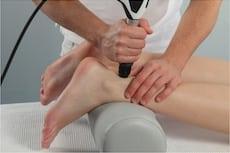 טיפול בגלי הלם דלקת גיד אכילס